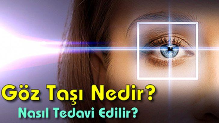Göz taşı nedir? Gözde taş nasıl tedavi edilir?
